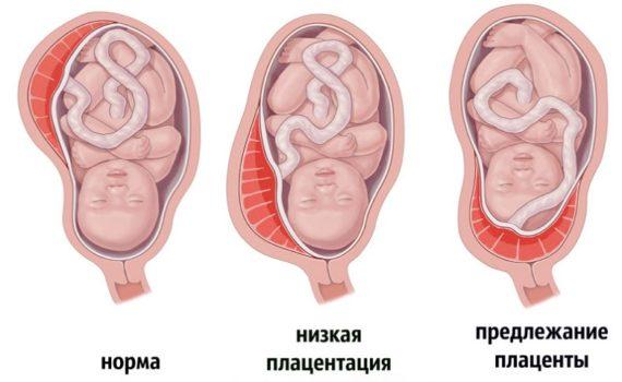 Низкая плацентация