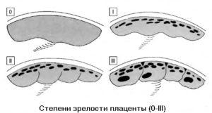 Зрелость плаценты